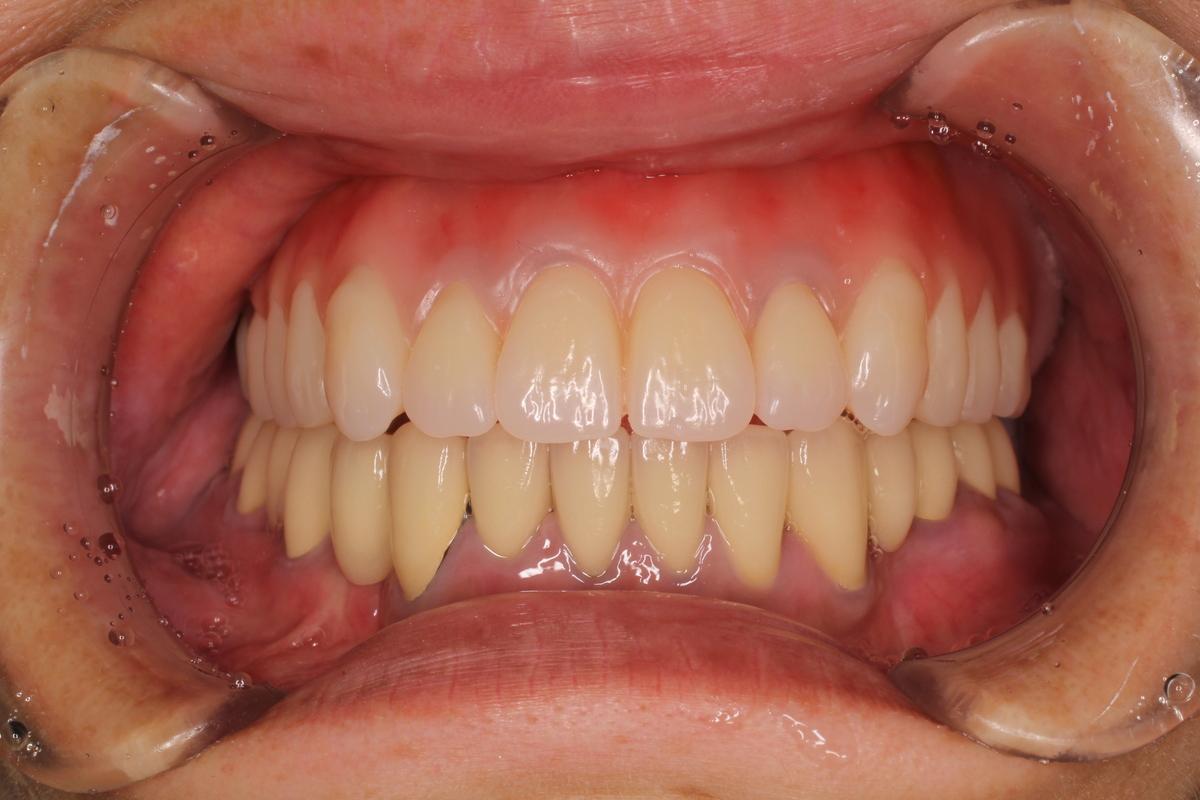 歯周病,インプラント,総入れ歯すべての治療で美しいお口を!2