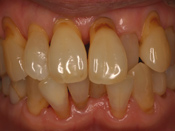 歯肉退縮1