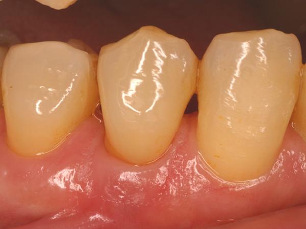 歯肉退縮3