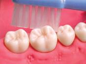 歯肉退縮5