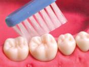 歯肉退縮6