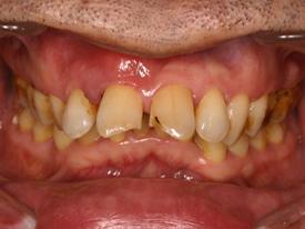 インプラントと歯周病1