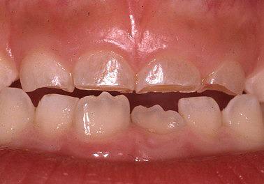 歯の着色2