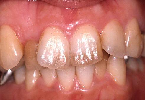 歯の着色3