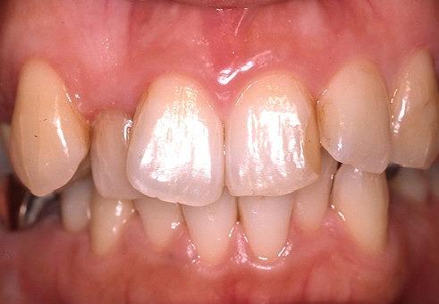 歯の着色4