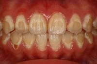歯の変色3