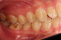 歯の変色4