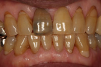 歯の変色5