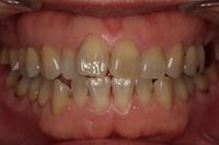 歯の変色2
