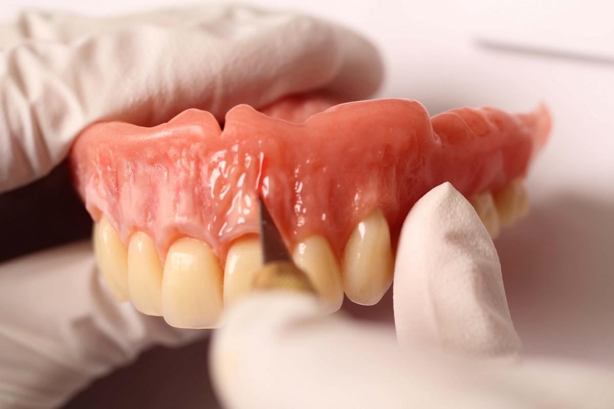 美しい義歯は永遠に~!