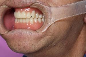 デジタル入れ歯の為の機器導入&デジタル入れ歯2