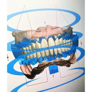 日本初のデジタル義歯